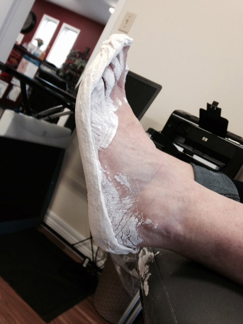 Patient-in-my-office-foot-casted-orthotics